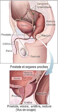 taille et poids próstata